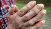 Les verrues sur la main - afin de les traiter avec des remèdes maison