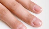 Accueil Recettes pour renforcer les ongles faibles