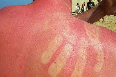 Évitez la peau Pellende - si ça va marcher