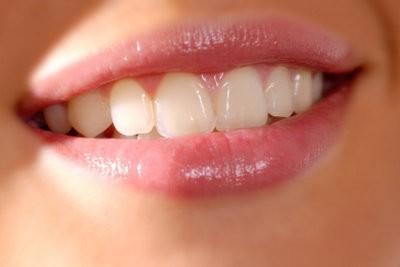Que faire au sujet lèvres sèches?