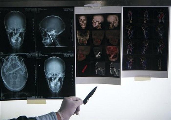 Chinese Man Lives avec un couteau dans la tête Pour 4 Années